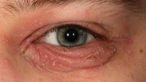 Blepharitis | Ophthalmology Surgery Center Fioravanti
